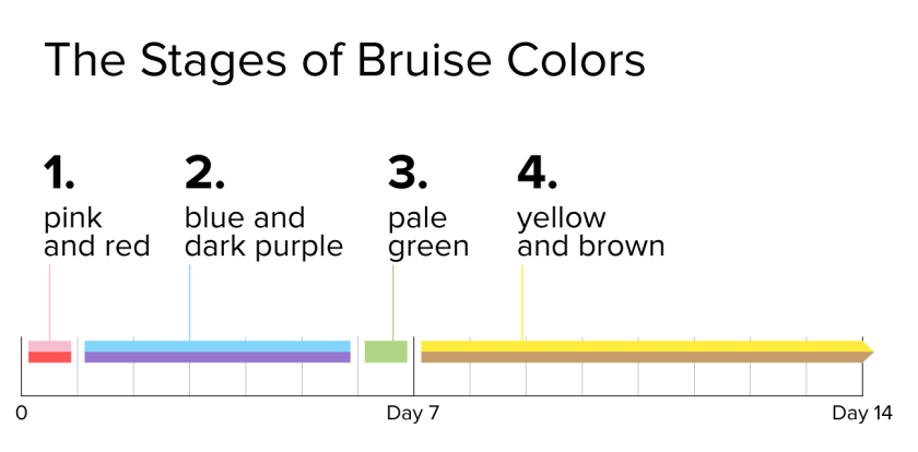 infographic_1296x640_bruise-colors.png